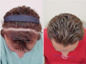 Personas con alopecias cicatriciales