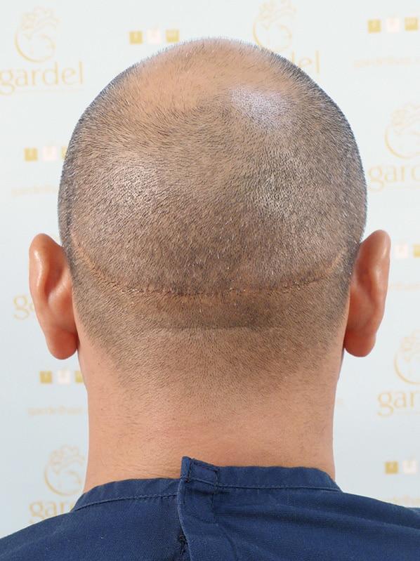 Testimonial de Corrección de Cicatriz